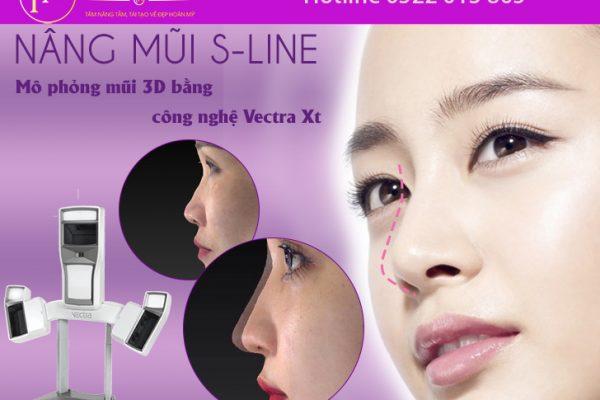 Nâng mũi S-line
