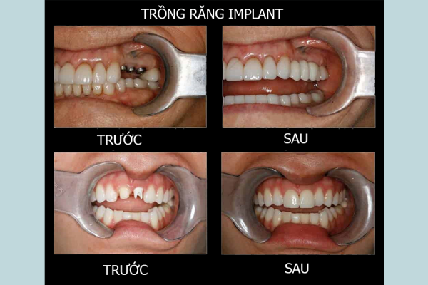 Tien Thanh