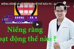 Niềng răng hoạt động như thế nào phần 2?